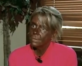 Did This New Jersey Mom Put Her Six-Year-Old in a Tanning Bed? (Video)