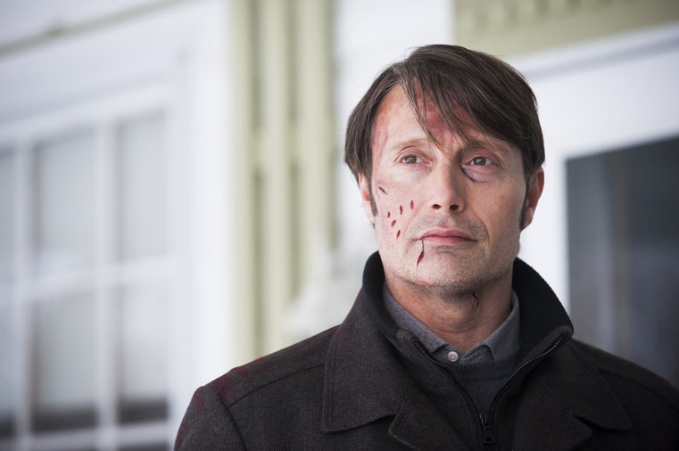 'Hannibal' Recap 3×7: Face-Off