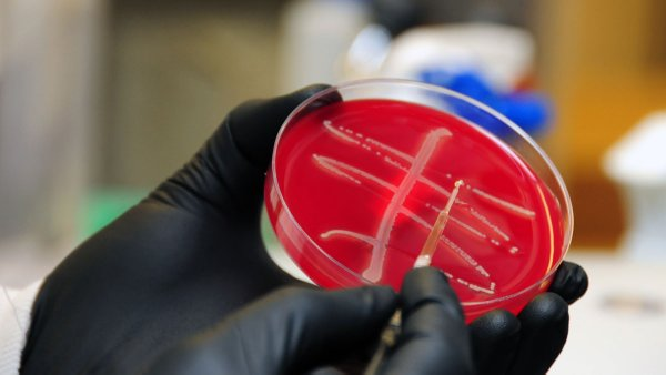 Top Infectious Disease Doc Says Don't Be Superstitious About Superbugs