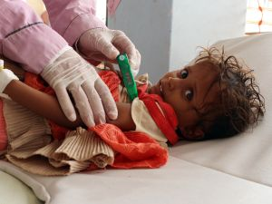 A Yemeni child suspected of being infected with cholera is checked by a doctor at a makeshift hospital operated by Doctors Without Borders (MSF) in the northern district of Abs in Yemen's Hajjah province on July 16, 2017.