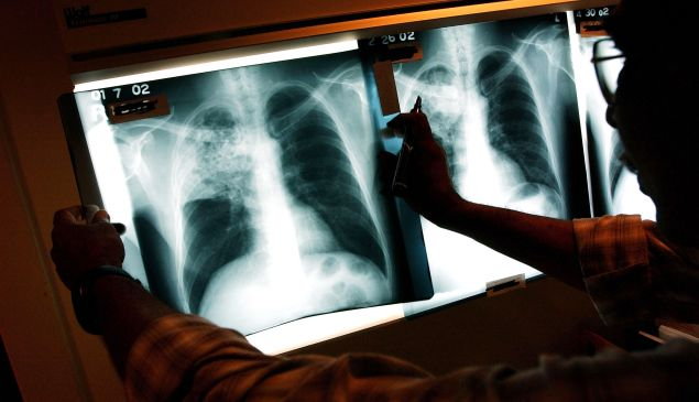 A doctor examines the x-rays of lungs.