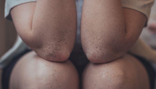 Unsplash/Lucaxx Freire