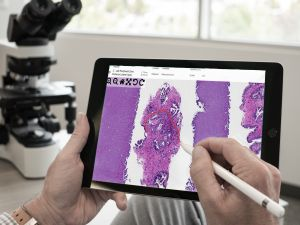 Lumea is a game changer for digital pathology.