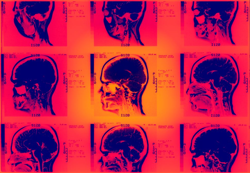 Researchers Develop AI That Can Predict Seizures Before They Happen