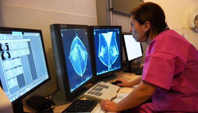 A doctor looks at the results of a mammography.