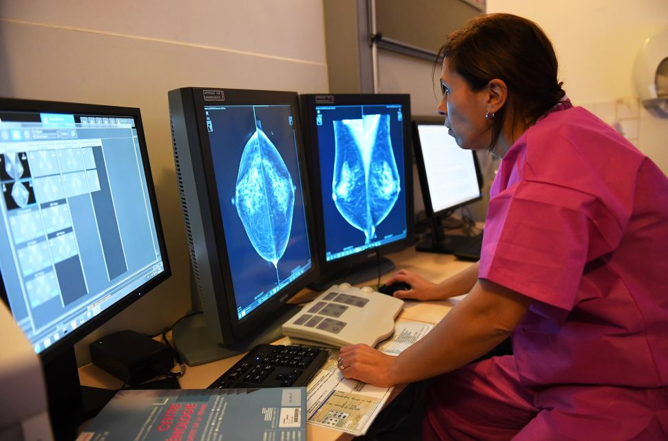 Artificial Intelligence Outperforms Doctors in Breast Cancer Diagnosis