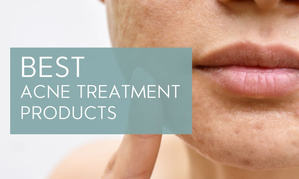 best-acne-treatments-featured-photo